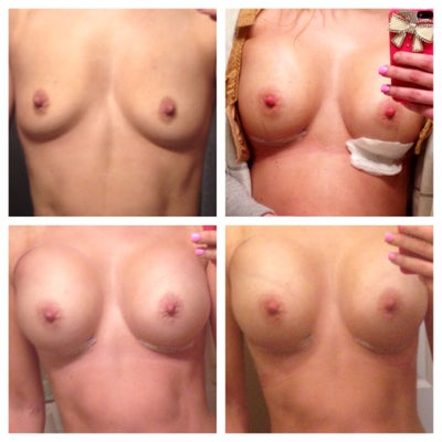 Cashual Breasts Absolutely Love My
